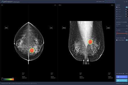 AI Solution for Mammography