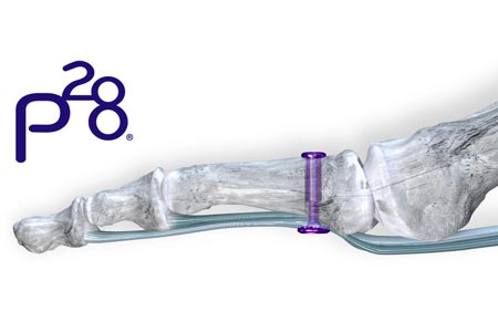 Paragon 28® launches first-of-its-kind in soft tissue fixation for the foot and ankle